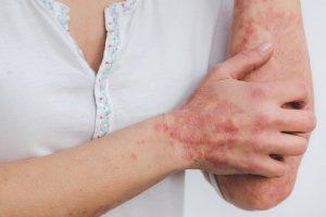 bőrgyógyász magánrendelés